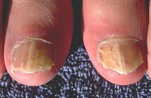 An beiden großen Zehen: Nagelpilz Behandlung dringend erforderlich